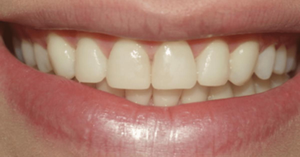 Erosão dental: o que é, como diagnosticar e opções de tratamento