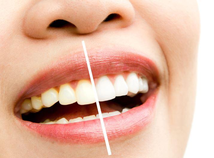 clareamento dental antes e depois dental speed