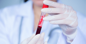 Como entender exames de sangue na odontologia