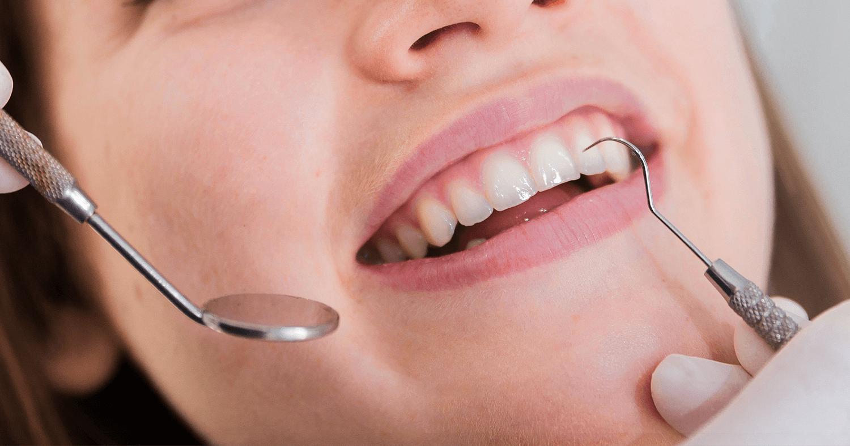 Clareamento dental de dentes não vitais