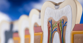 A importância do combate às infecções endodônticas