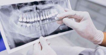 3 dicas de fotografia em Odontologia