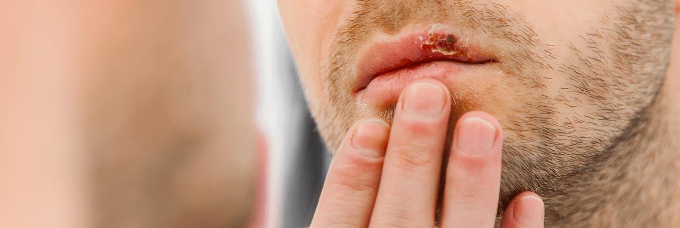 Herpesvírus humano: tipos, manifestações orais e tratamento
