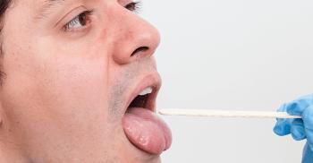 Lesões na língua: Diagnóstico e tratamento