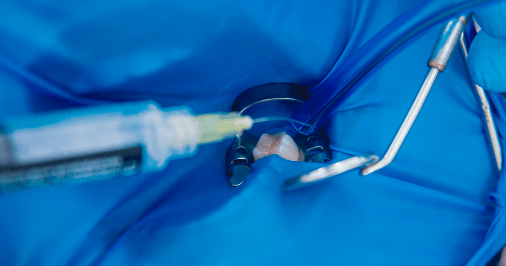 Isolamento Absoluto na Odontologia: Passo a passo