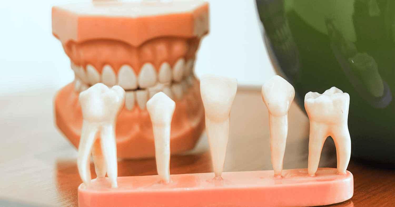 Efeito da radioterapia na dentina radicular e em cimentos obturadores